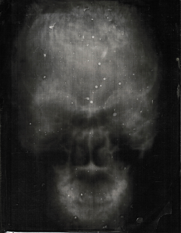 Gathering the Bones – Wet Plate Collodion X-Rays  9749b71a35f